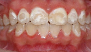decalcification braces