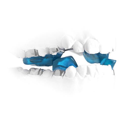 Twin Blocks Dental braces