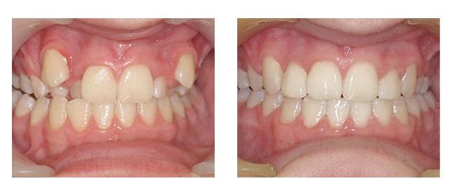 Elmhurst Orthodontic Clinic