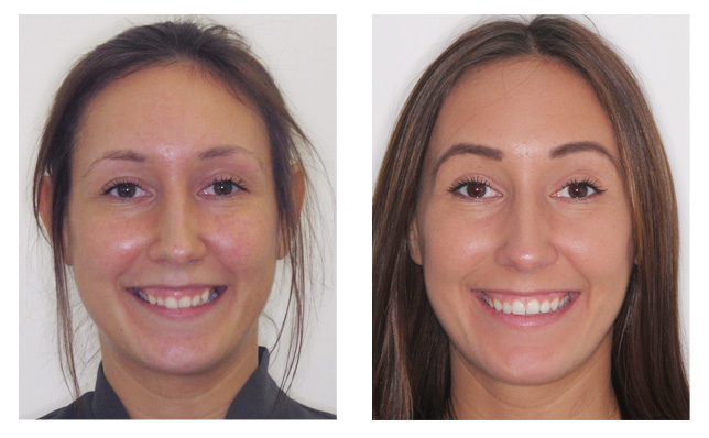 Elmhurst Orthodontic Patients